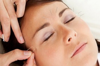 Acuheal – Acupuncture clinic